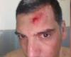 La violencia contra los árbitros sigue siendo un problema mundial