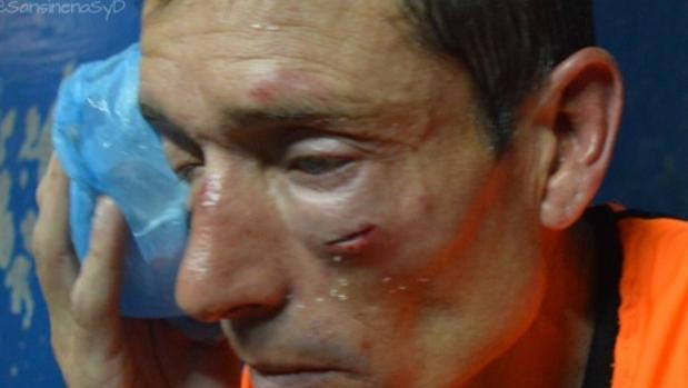 Otro linchamiento lleva a los árbitros argentinos a la huelga
